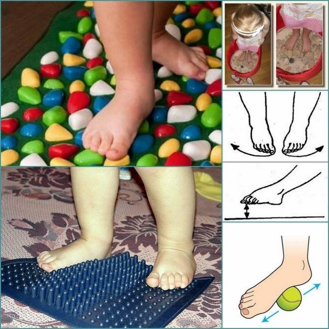 Профилактика плоскостопия у детей в доо