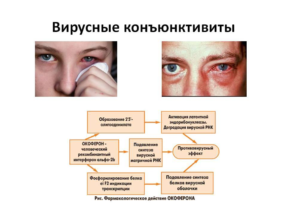 Может ли быть конъюнктивит на одном глазу? - энциклопедия ochkov.net