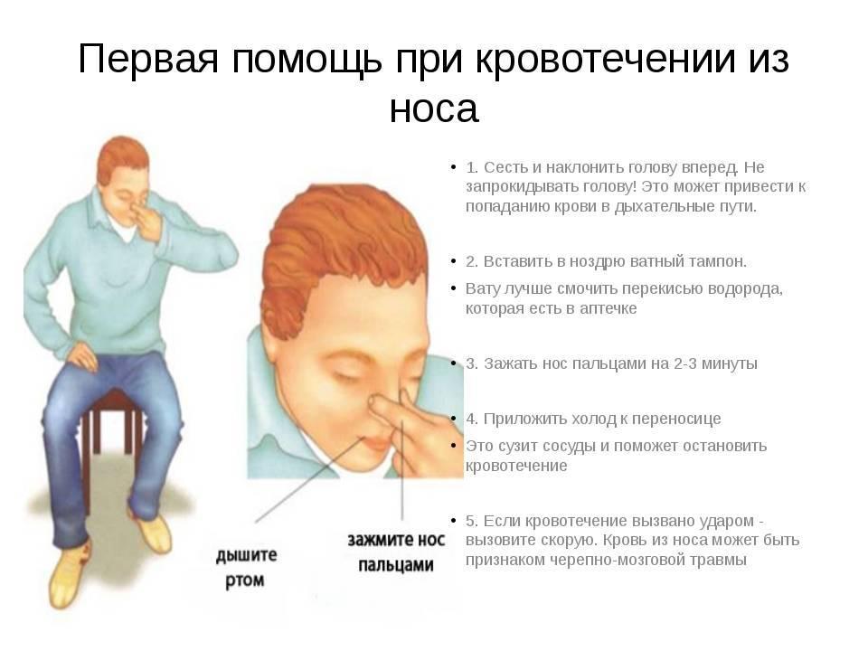 Тампонада носа