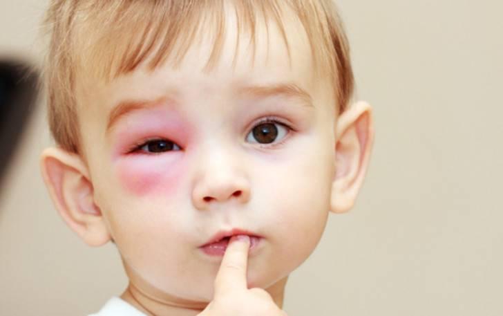 Продуло глаз, веко опухло — как его лечить?
