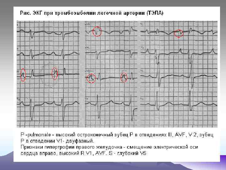 Статья: что показывает кардиограмма сердца? - медицинский центр медиант