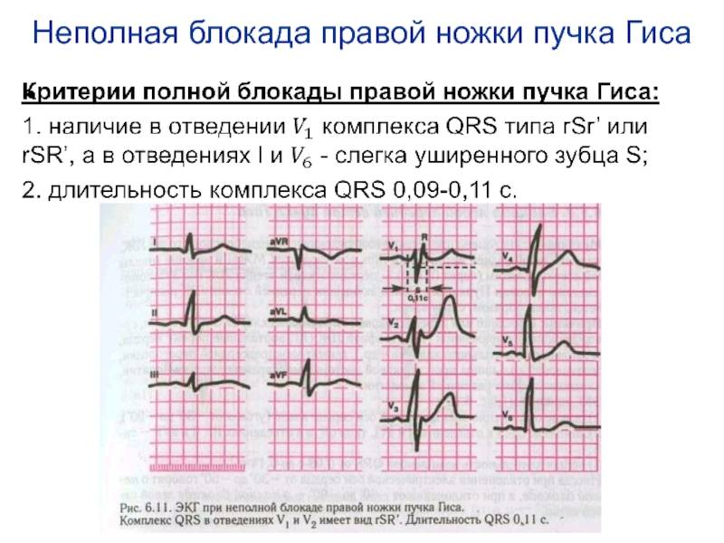 Блокада сердца, лечение блокады пучка сердца, причины блокады сердца.