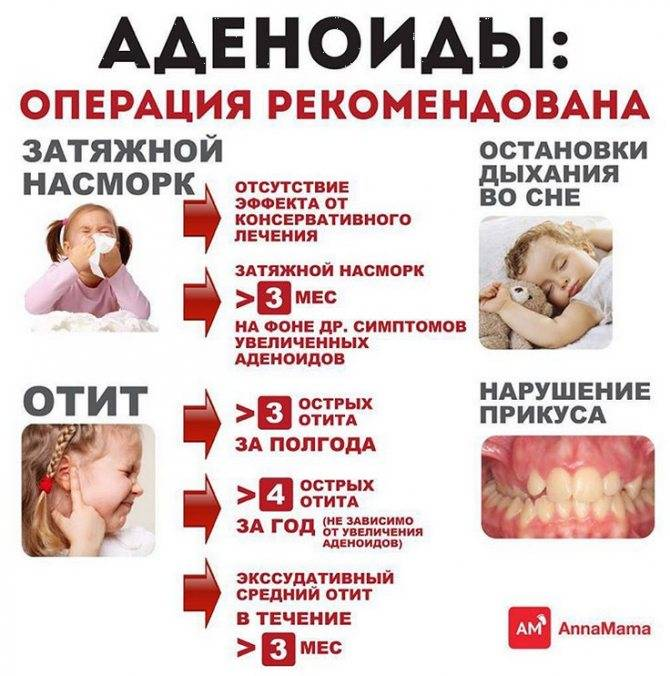 Аденоиды – что это такое, лечить или не лечить аденоиды   медицинский центр «президент-мед»