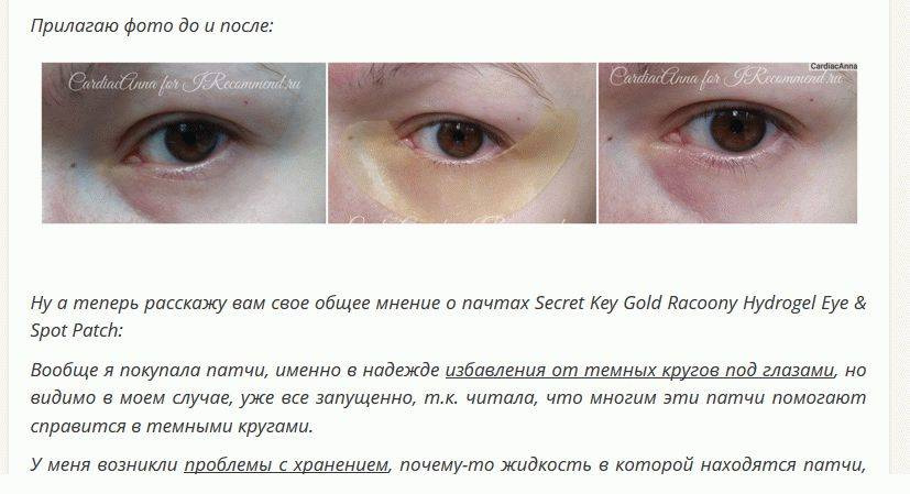 Синяки под глазами: причины, признаки, симптомы и лечение «ochkov.net»