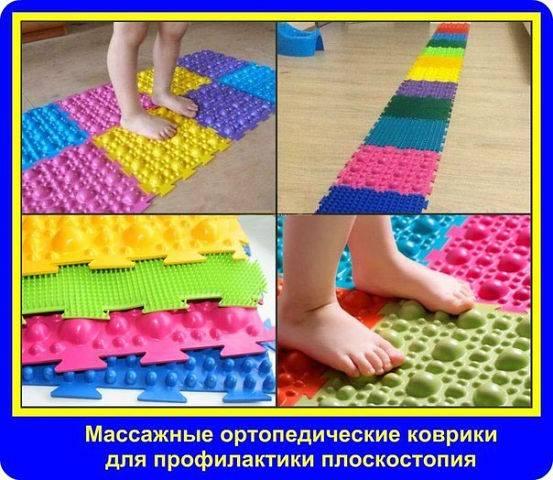 Как лечить плоскостопие у детей. причины, симптомы, диагностика, профилактика и методы лечения