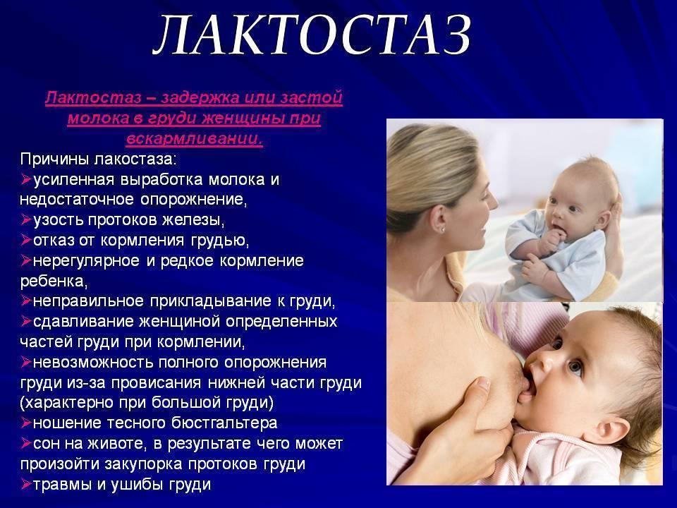 Лактостаз. проблемы с грудью в период грудного вскармливания