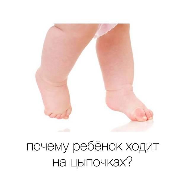 Малыш ходит на цыпочках: когда нужен врач?