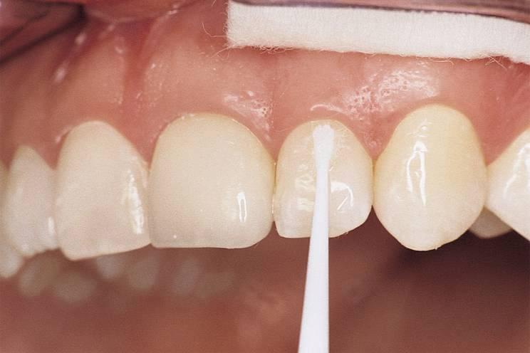 Фторлак для зубов – что это такое и когда применяется. нанесение, польза, вред и стоимость процедуры