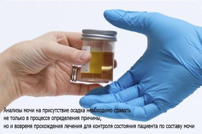 Мутная моча причины: опытный уролог в москве.