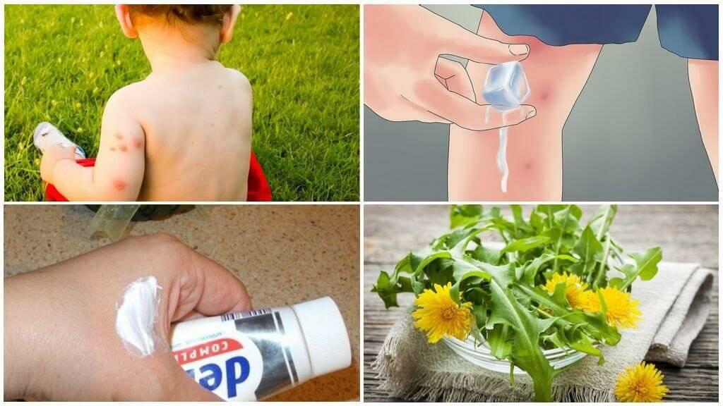 Укус клопа на теле ребенка: симптомы, чем мазать