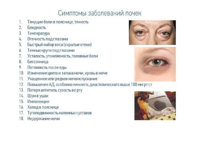 Особенности лечения углового блефарита