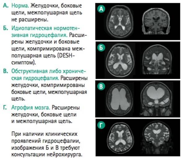 Желудочки головного мозга — большая медицинская энциклопедия