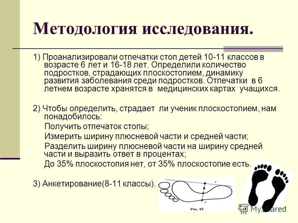 7 видов плоскостопия у детей и взрослых