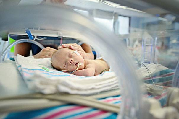 Недоношенные дети: мифы и реальность