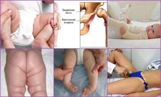 Остеопатия при дисплазии тазобедренных суставов у детей