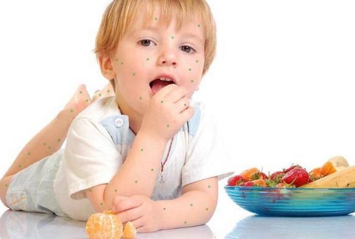 Диета при ветрянке у детей - особенности питания: что можно есть, а что нельзя?
