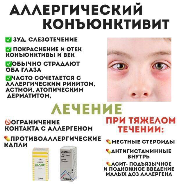 Виды конъюнктивита у взрослых - энциклопедия ochkov.net