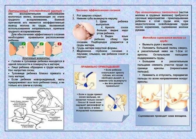 Обвисание груди - причины, диагностика и лечение
