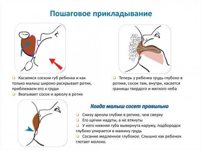 Мастит: причины, симптомы, лечение