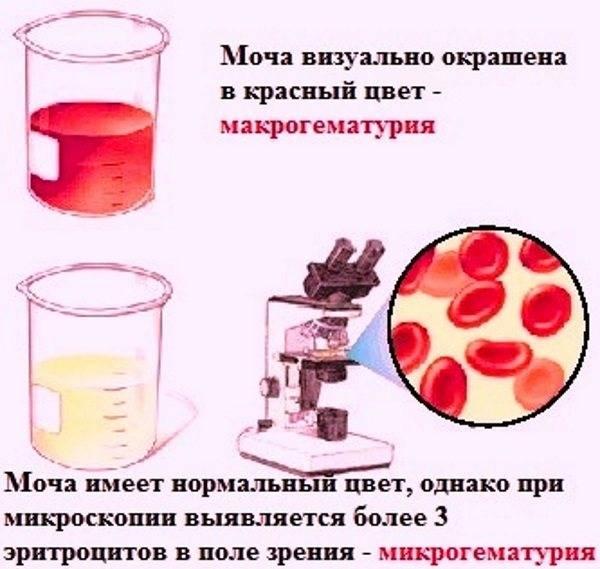 ➡️ кровь в моче у мужчин: что это может быть, причины, симптомы и лечение - клиника девита (devita)