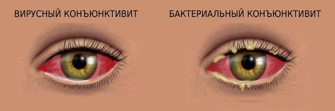 Конъюнктивит поражает один или оба глаза?