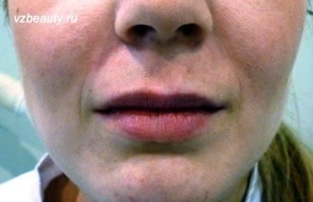 Цианоз носогубного треугольника у ребенка