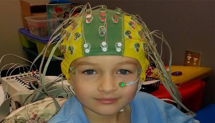 Ээг (электроэнцефалография) для детей