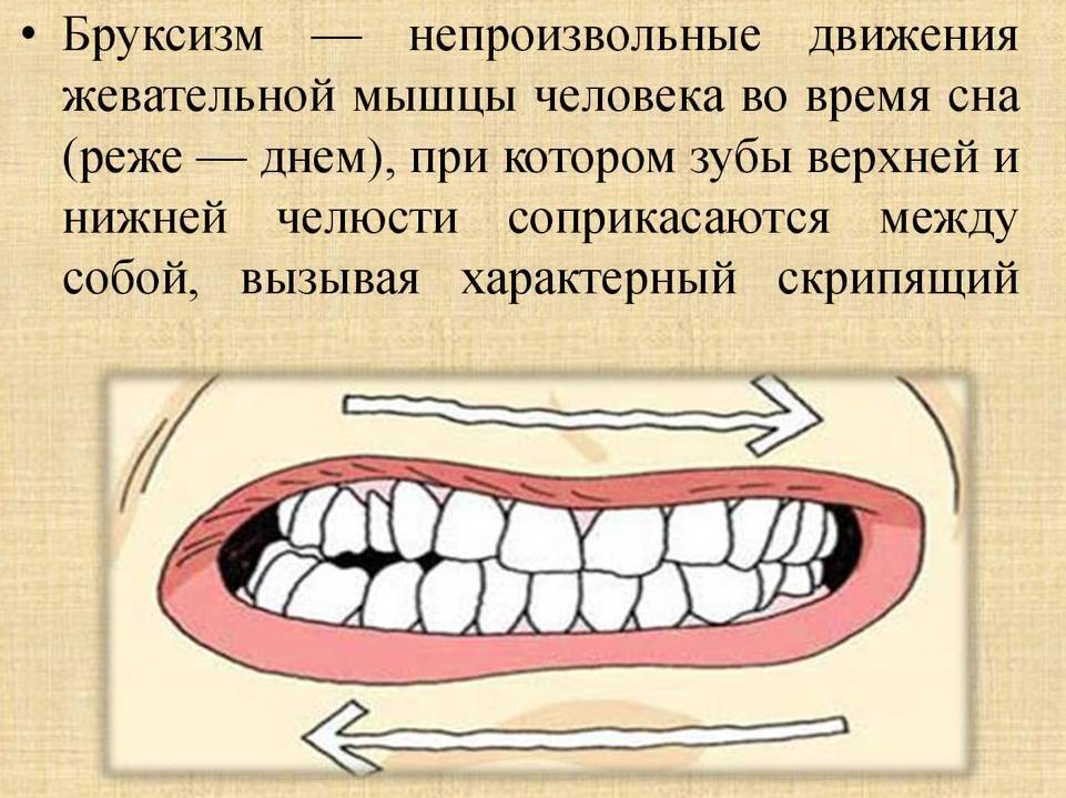 Бруксизм