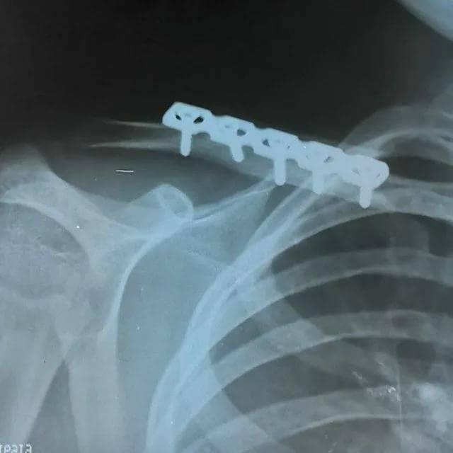 """Что такое """"синдром щелкающего плеча"""" - нолтрекс."""