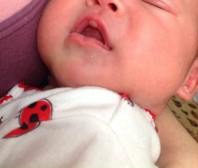 Мозоль на губе у новорожденного и грудничка: причины появления и фото с пояснениями