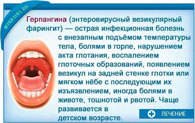 Острый тонзиллит (ангина)