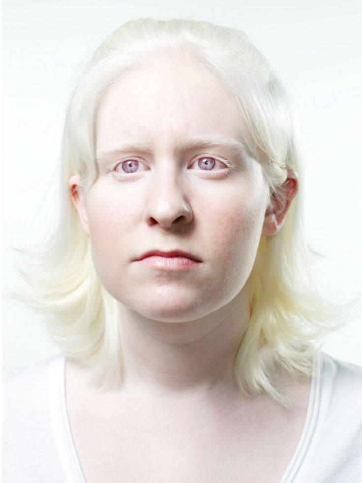 Альбинос: кто такой, 3 типа альбинизма, способы лечения, советы, видео