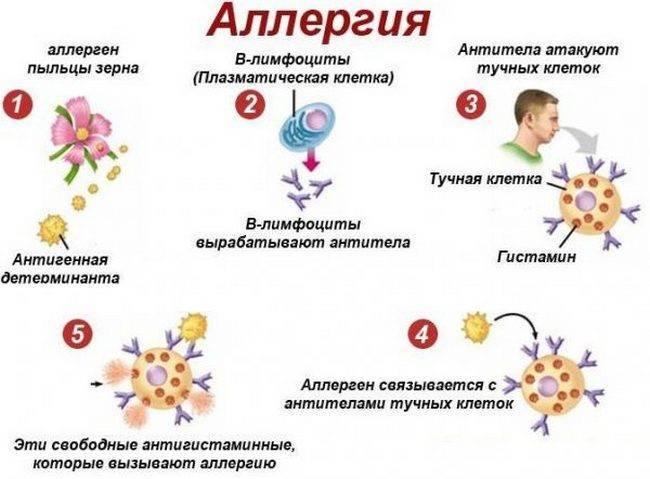 Аллергия на солнце: симптомы, причины, лечение :: здоровье :: рбк стиль
