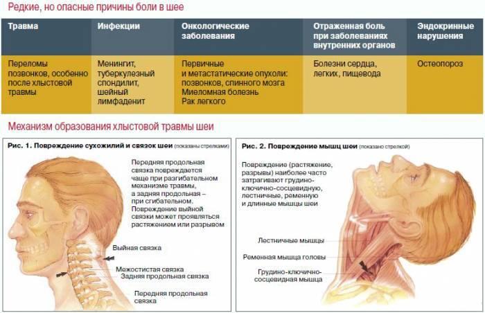 Люмбоишалгия - лечение, симптомы, причины, диагностика   центр дикуля