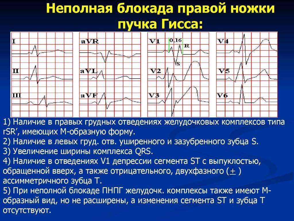Блокада правой ножки сердца лечение | лечение сердца