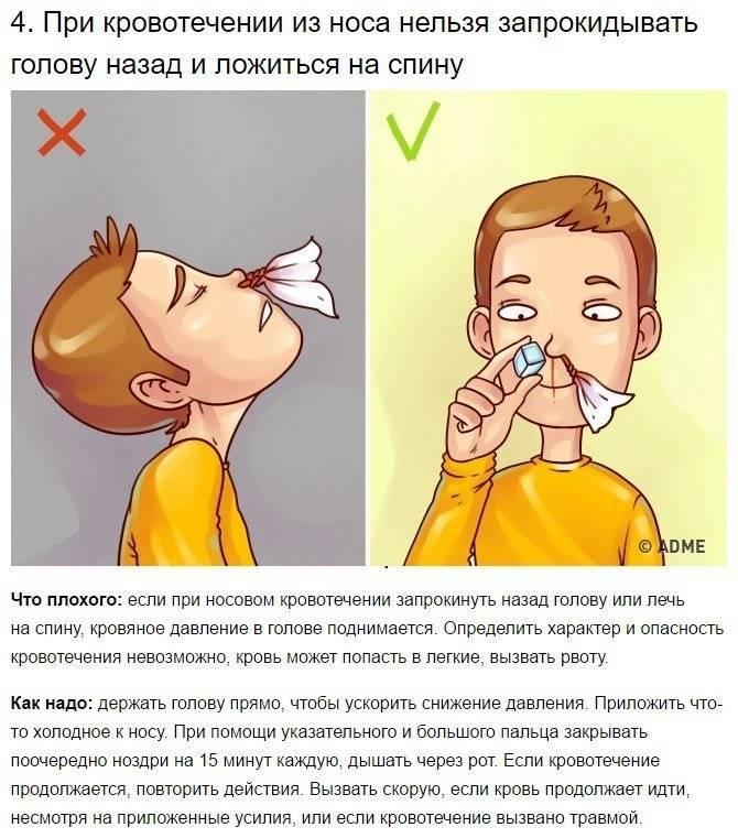 Кровотечение из носа: причины, первая помощь и народные средства - новости yellmed.ru