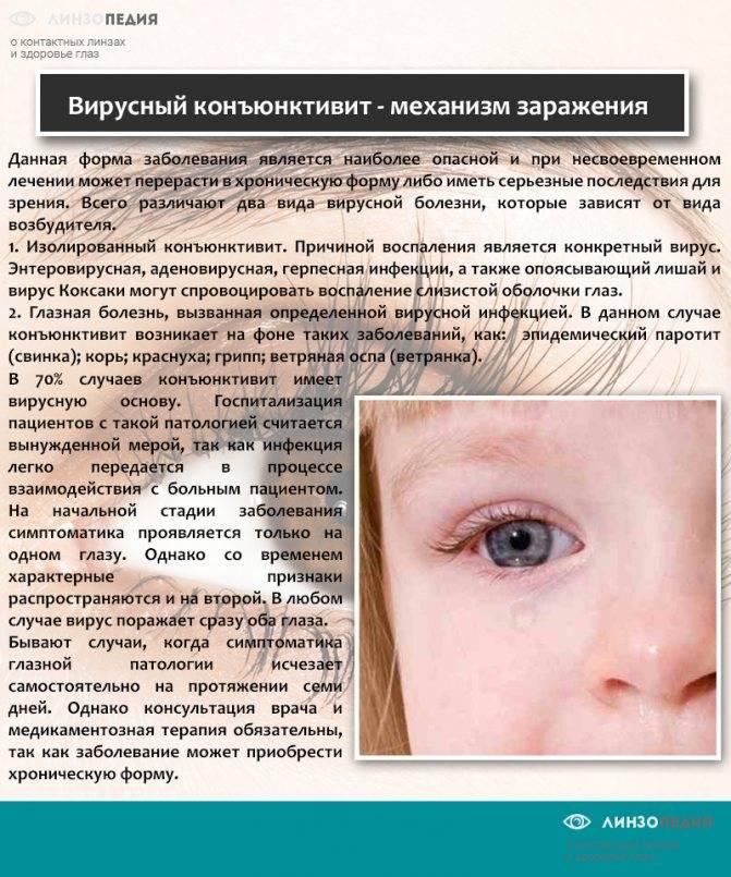 Какой мазью лечить конъюнктивит? - энциклопедия ochkov.net