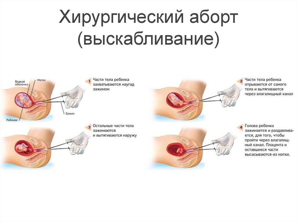 Выкидыш: симптомы и признаки – напоправку