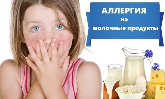 Чем кормить ребенка, если у него аллергия?