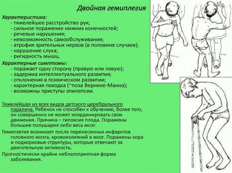 Детский церебральный паралич (дцп): симптомы, причины, реабилитация – напоправку – напоправку