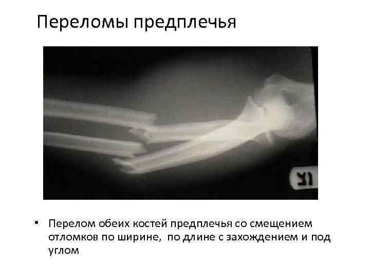 Травмы в области локтевого сустава