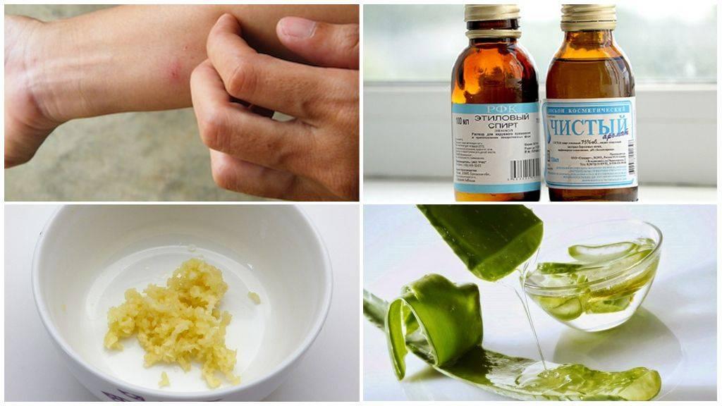 Аллергия на прокладки | компетентно о здоровье на ilive