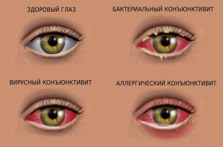 Диагностика зрения во время беременности