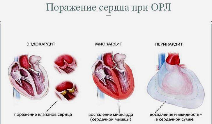 Ревматизм. острая ревматическая лихорадка, болезнь сокольского-буйо. | визуальная ревматология