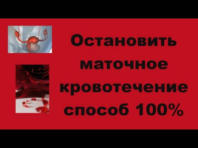 Гиперменструальный синдром: обильные месячные   университетская клиника