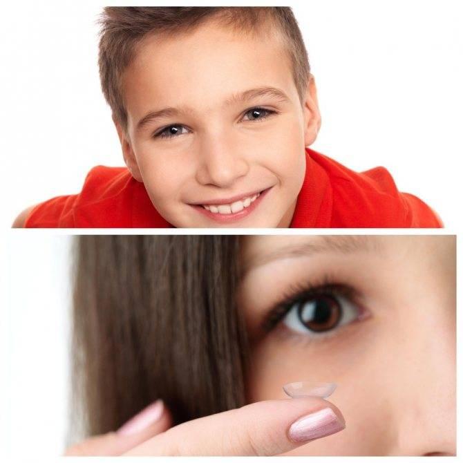 Как подбирают контактные линзы детям? можно ли детям носить контактные линзы