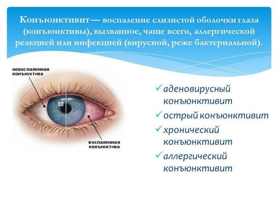 Как протекает конъюнктивит? - энциклопедия ochkov.net