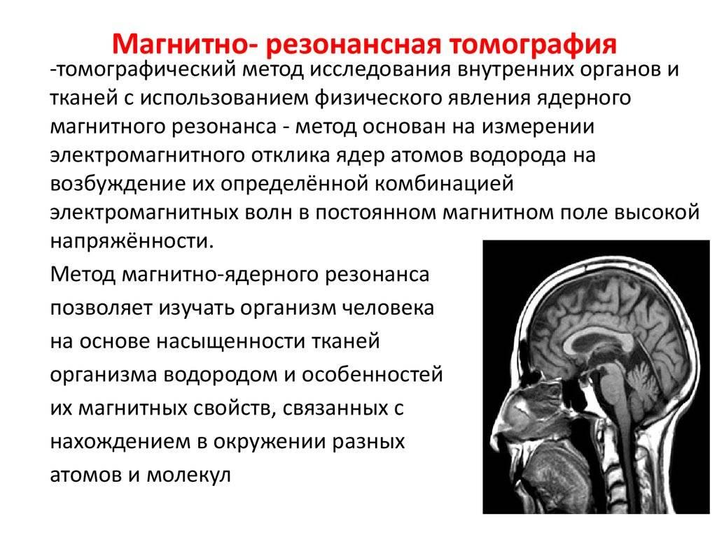 Цереброваскулярная патология   нейродети