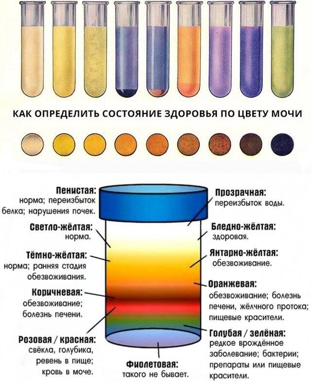 Кровь в моче, или гематурия. причины и лечение гематурии.