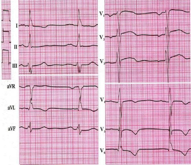 Исследования сердца, артериального давления: экг,холтер-экг, эхо-кг, смад - медицинский центр «эхинацея»